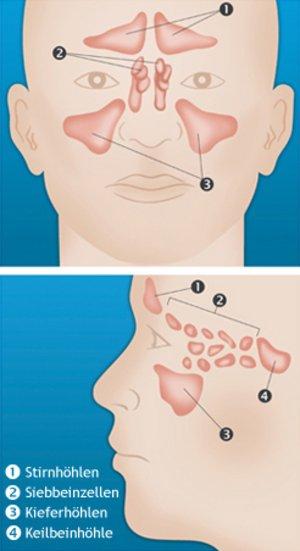 Wann ist eine Entzündung chronisch? » Nasennebenhöhlenentzündung ...